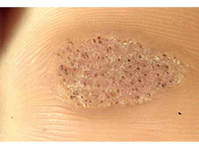 Wart & Verruca removal - Will it ever go away? | The Vale Clinic Reading