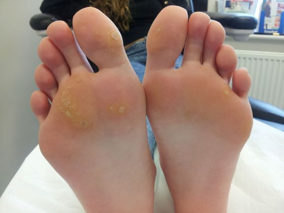 Wart and Verruca removal by needling treatment
