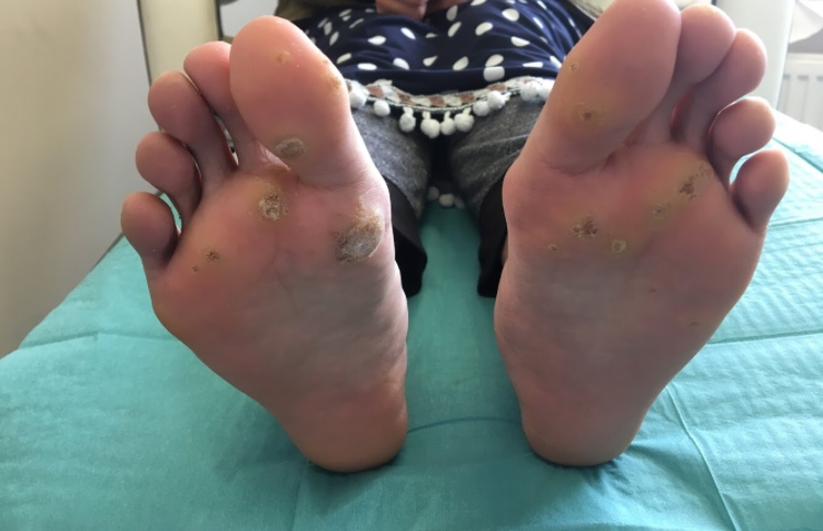 Wart & Verruca removal successfully treated- Will my 7-year old verruca go away?