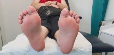 Verrucae on both feet resolved