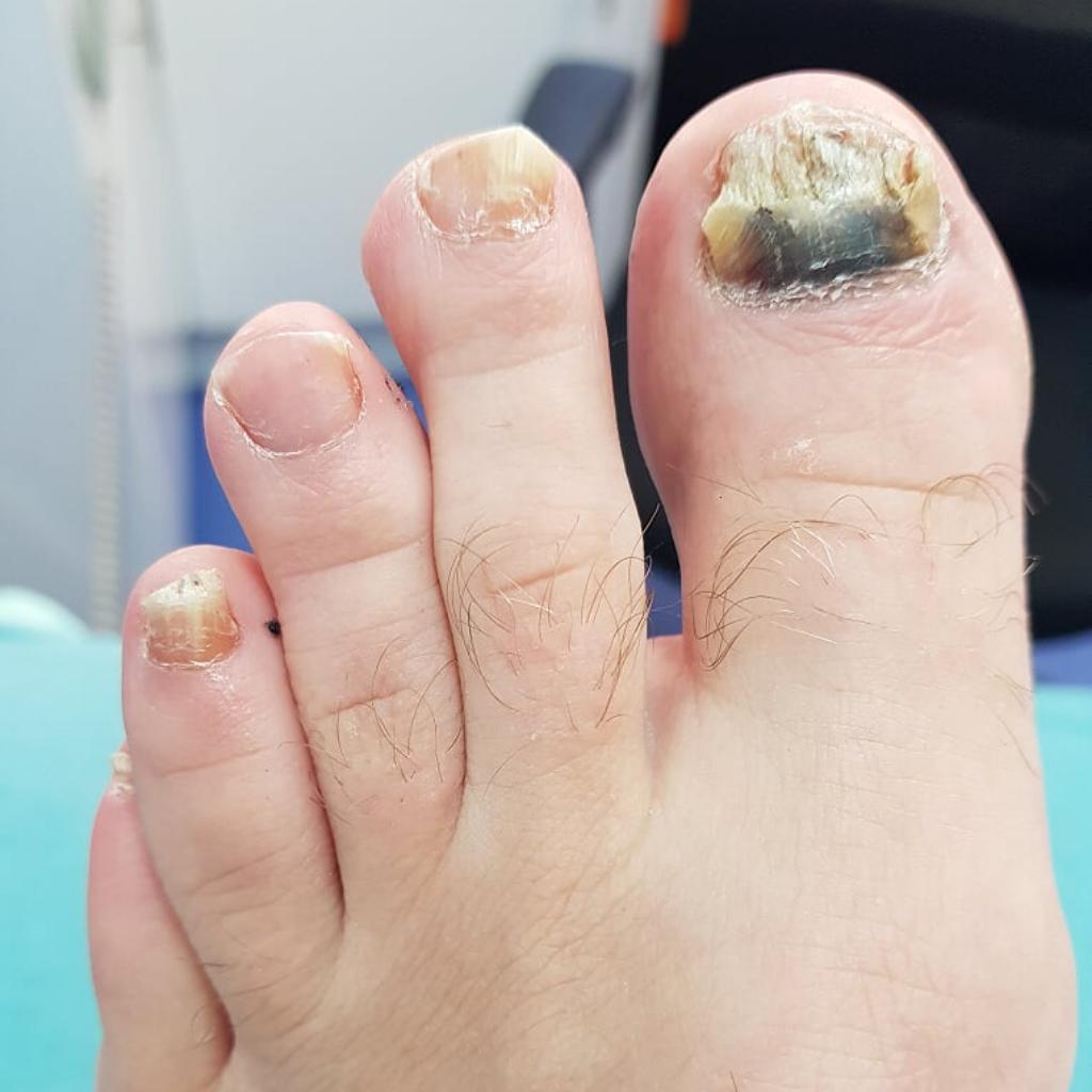 before fungal nail treatment
