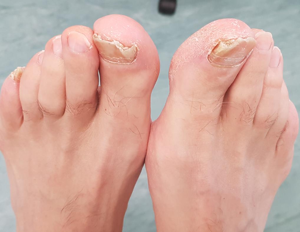 Fungal Nail before treatment
