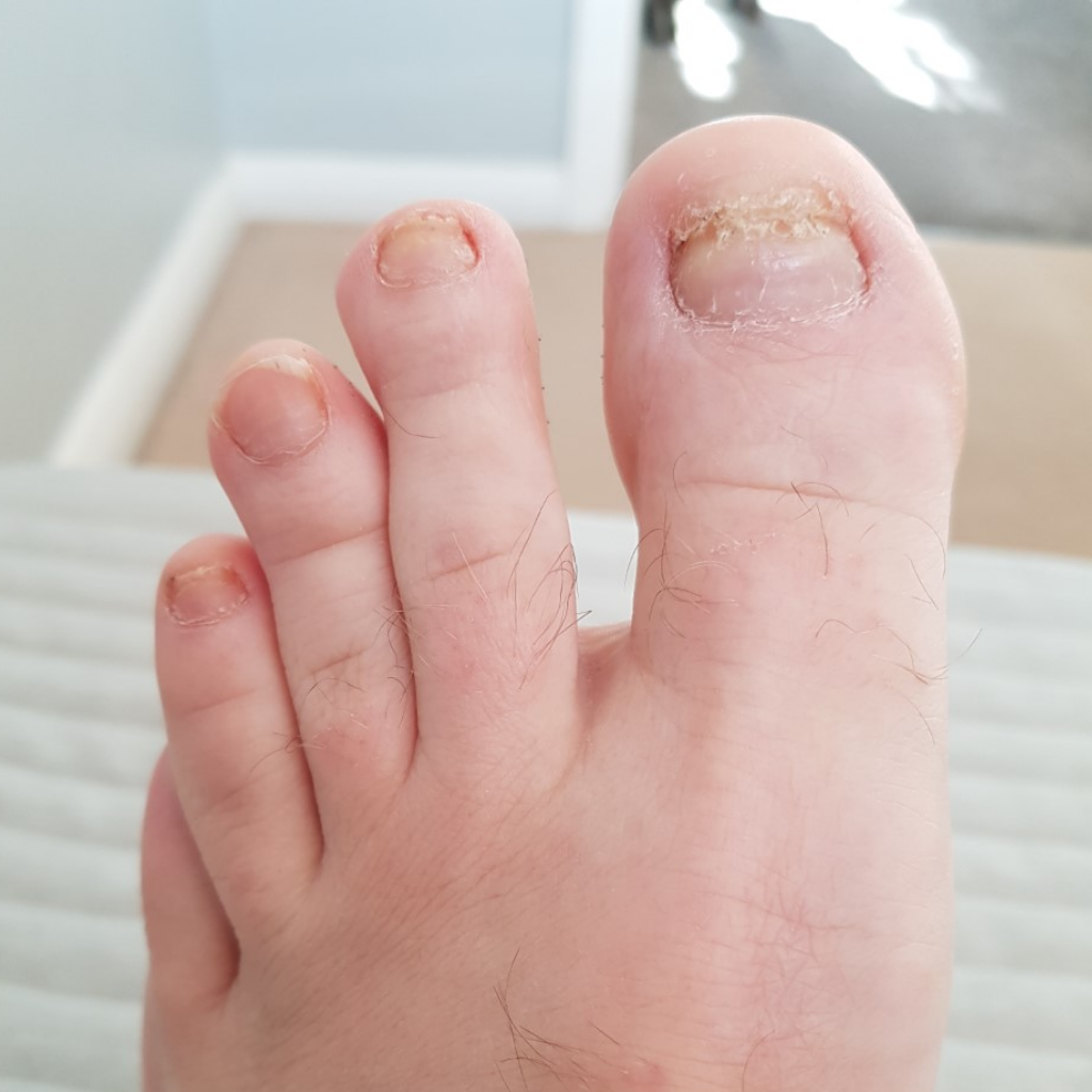 after fungal nail treatment